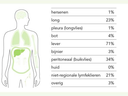 uitzaaiingen-darmkanker.png
